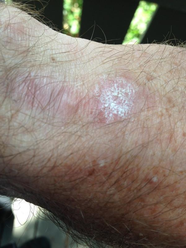 Name:  Fliegerkronenschmerz_small.jpg